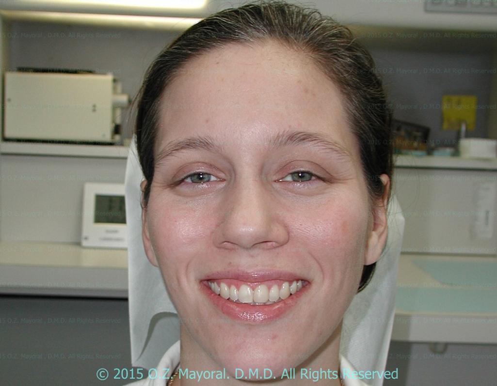 After-Patient 4